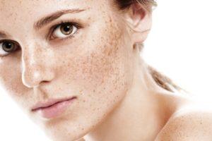 skóra z przebarwieniami