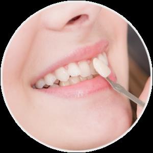 Licówki u dentysty